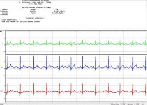 cardiologia-clinica-veterinaria-velazquez-electrocardiograma